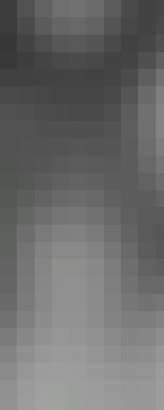 Abbildung 3 Röntgen der Wirbelsäule a.p.: Ausgangsbefund (08/2017), Progress der Skoliose (11/2018), mit Korsett (12/2018), präoperative (2/2020) und postoperativ nach dorsaler Spondylodese (11/2020).